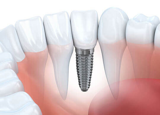 dental implants dubai, dental implants clinic