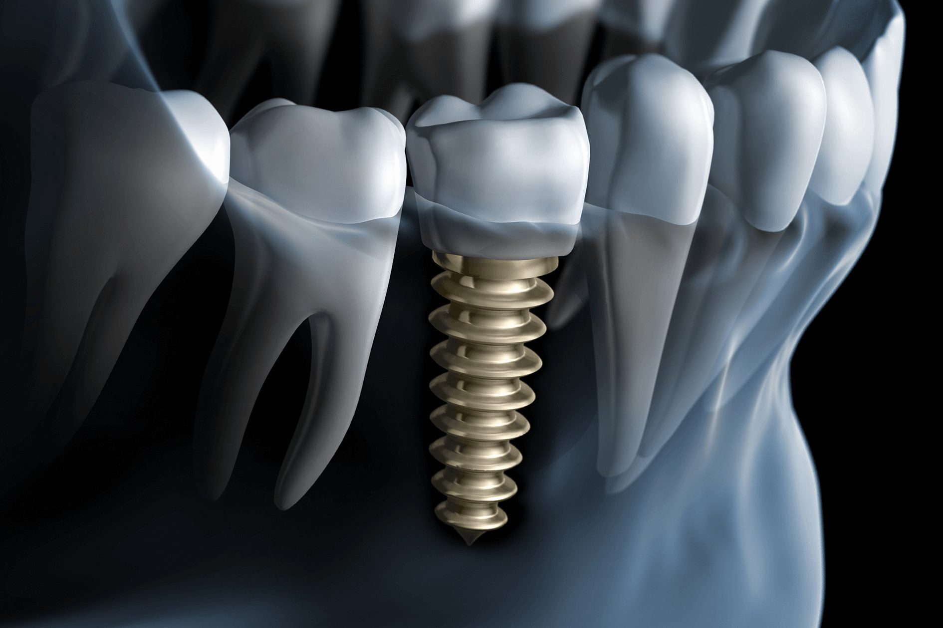 dental implant hospital dubai, uae