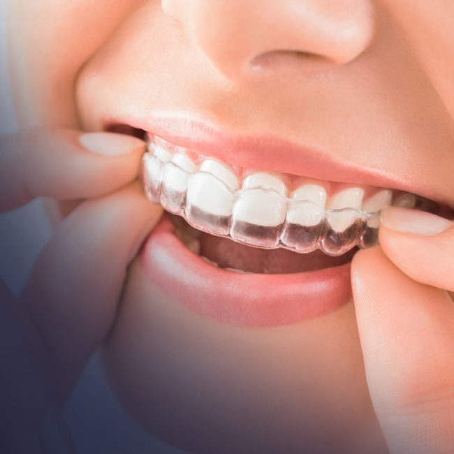 invisalign treatment in dubai