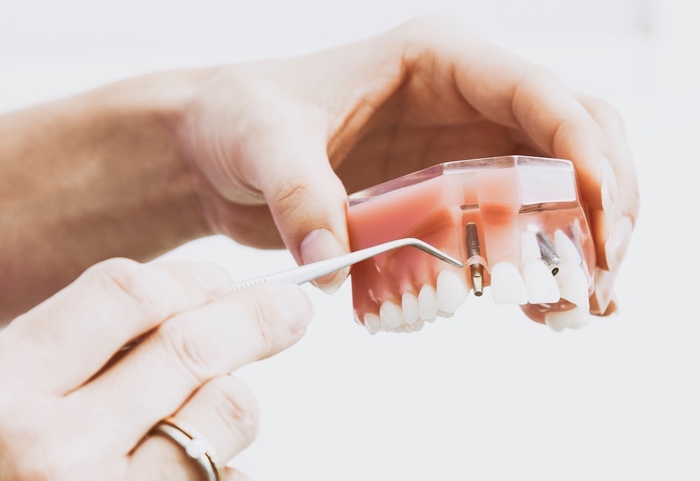 dental implant surgery in dubai, uae