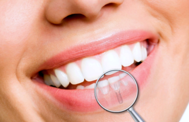 dental implants benefits, dental implant cost dubai uae