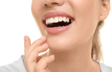 What is the Best Solution for Missing Teeth?